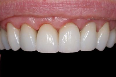 Crowns and Gum Recontouring A