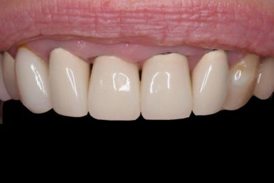 Crowns and Gum Recontouring B