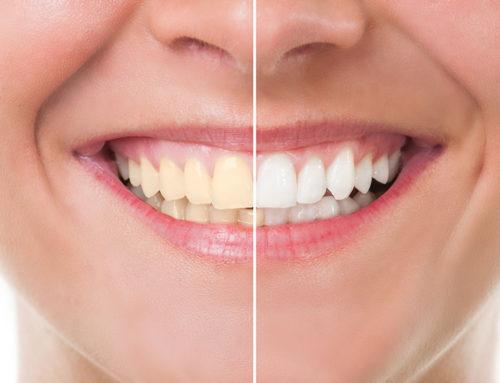 Teeth Whitening Near Me, Newport Beach CA 92663