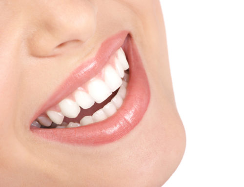 How a Cosmetic Smile Makeover Can Improve Your Smilein Newport Beach CA